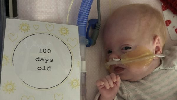 Girl born weighing 590 grams marks World Prematurity Day as she defies doctors' predictions