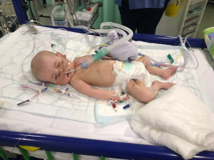Baby Jenson in hospital - Parents supported at Acorn House